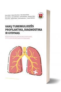 Vaikų tuberkuliozės profilaktika, diagnostika ir gydymas | Arūnas Valiulis