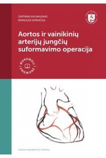 Aortos ir vainikinių arterijų jungčių suformavimo operacija | Gintaras Kalinauskas, Remigijus Sipavičius