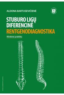 Stuburo ligų diferencinė rentgenodiagnostika | Aldona Bartusevičienė