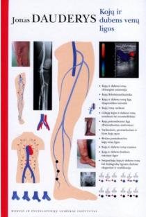 Kojų ir dubens venų ligos | Jonas Dauderys