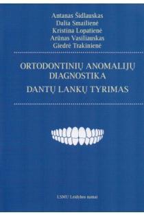 Ortodontinių anomalijų diagnostika: dantų lankų tyrimas | Antanas Šidlauskas, Dalia Smailienė, Kristina Lopatienė