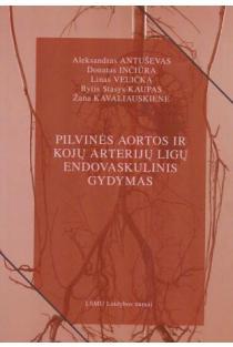 Pilvinės aortos ir kojų arterijų ligų endovaskulinis gydymas | Aleksandras Antuševas, Donatas Inčiūra ir kt.